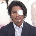 山口達也の左目の傷はどうしたの!?怪我をした本当の理由や真相とは??