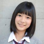 芳根京子はわきに難病を抱えてる!?病気の原因や天祖神社での願掛けとは?